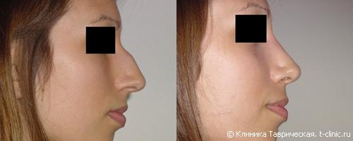 Ринопластика носа в барнауле